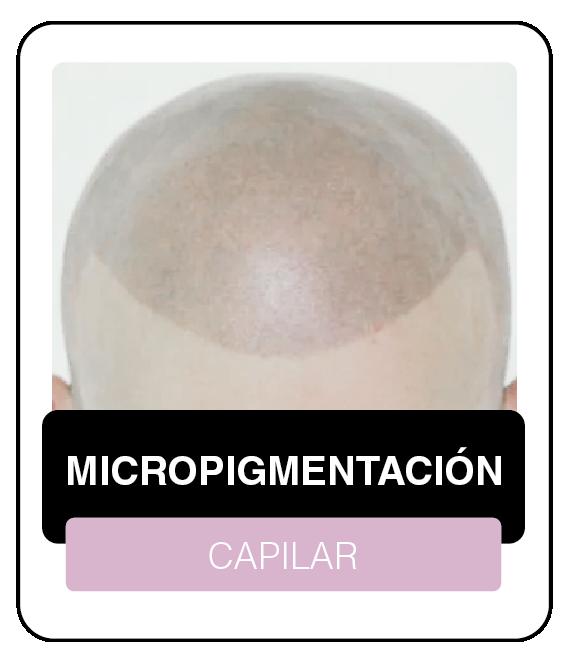 CAPILAR-04
